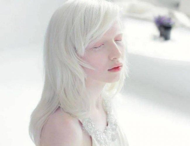 她被嘲「吸血鬼」,21歲逆襲最美超模,獲百萬網友大讚:天使路過人間!