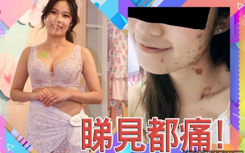 女星黃凱怡煎香腸險毀容!忘記解凍被炸傷,臉部脖子全是傷疤