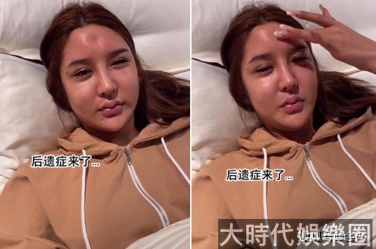 23歲女網紅曬整容失敗圖!腦門凹陷,眼睛抽搐