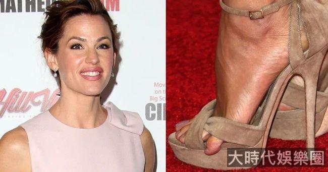 女明星的小腳趾太難了,心疼得我想給她們做理療